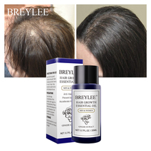 BREYLEE Hair Growth Essential Oil 20ml Fast Powerful Products Care Prevent Baldness Anti-Hair Loss Serum Nourishing 55