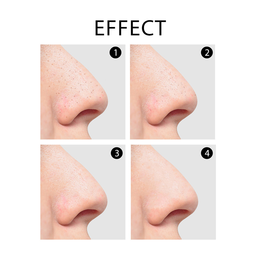 Face Deep Cleaning Blackhead Remover Comedo Acne Pimple Remover Skin Care Tool Black Dots Pore Cleaner Vacuum Suction Machine in Face Skin Care Tools from Beauty Health