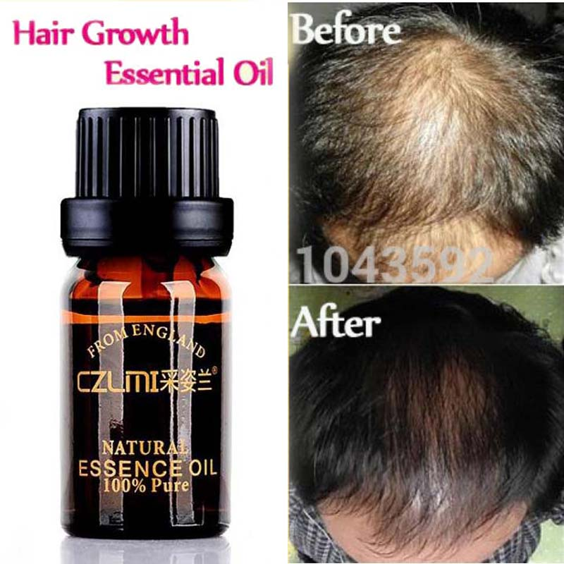 Hair Loss Products Pure Natural With No Side Effects Anti-hair Loss Grow Regrowth Pilatory Hair-restorer Promotes Hair Growth