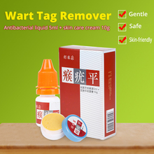 KONGDY Body Warts Treatment Cream Chinese Traditional Foot Corn Removal Patch Plantar Genital Ointment Care