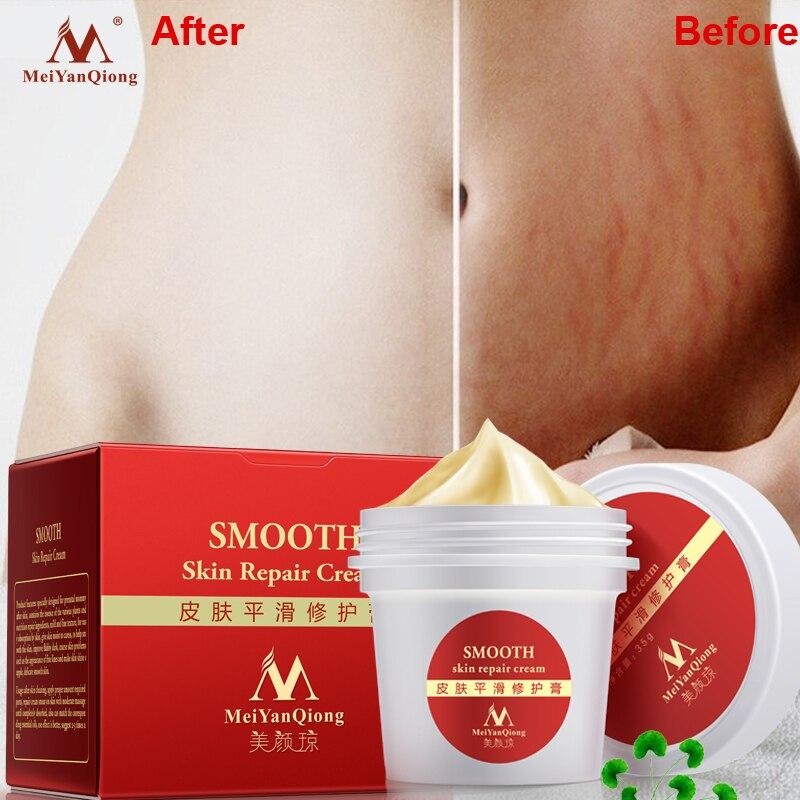 Alta calidad suave piel crema para las estrías Eliminación de la cicatriz a Maternidad piel reparación Cuerpo crema quitar cicatriz Cuidado posparto