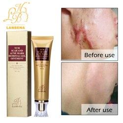 Strentch Marks Acne Scar Remover Acne Treatment Shrink Pores Gel Bleaching Creams Whitening Moisturizing Face Cream Skin Care