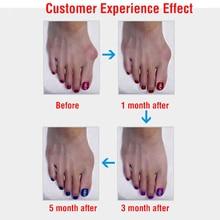 1 Pair=2 Pcs Gel Silicone Bunion Corrector Big Toe Separators Straightener Spreader Foot Care Tool Hallux Valgus Pro massager