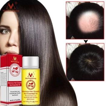 20ml Moroccan Nut Hair Growth Hair Grow Oil Hair Loss Products Beauty Hair Care Hair Loss Products