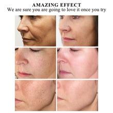 1 Pcs Women Essential Oil Moisturizing Anti-aging Whitening