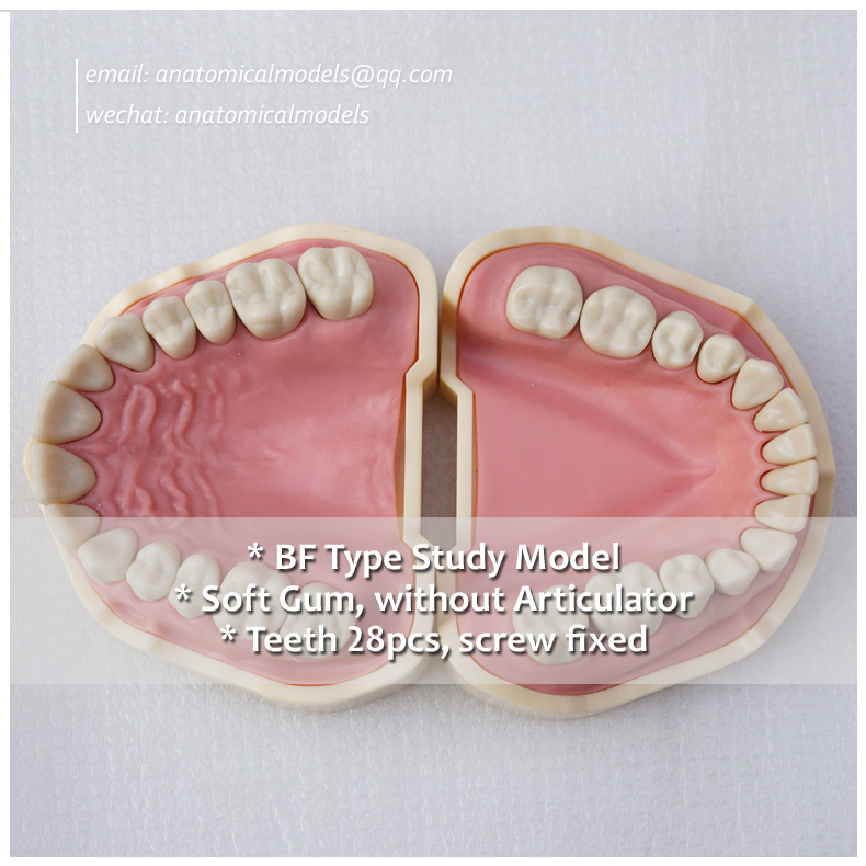 13006, BF Type Black Teeth Study Model, Medical Science Educational Dental Teaching Models, @CMAM anatomicalmodels 13007 dh106 hard gum 32pcs teeth standard jaw model medical science educational dental teaching models