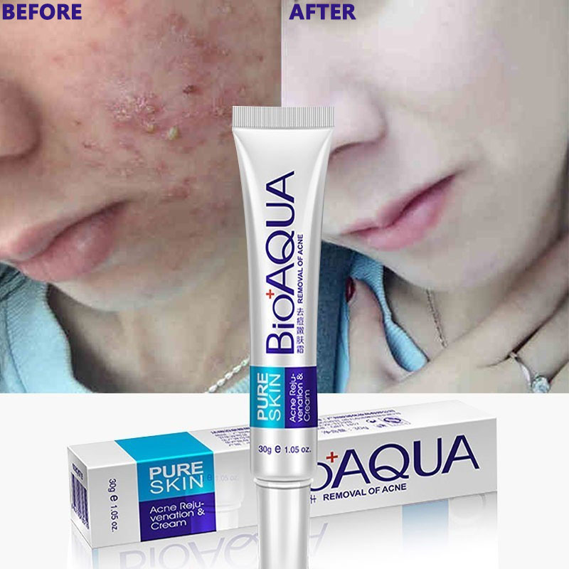Acne Scars Cream Acne Treatment Face Care Anti Acne Removal Gel
