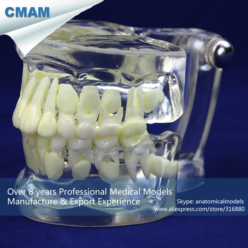 12602 CMAM-DENTAL20 Demonstration Model of Alternating Growth of Transparent Milk Permanent Teeth growth of telecommunication services