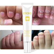 5PC Nail Care Treatment Essence Oil Hand Foot Fungal Cream Nail Fungus Cuticle Remover Nails Onychomycosis Repair Manicure Tools