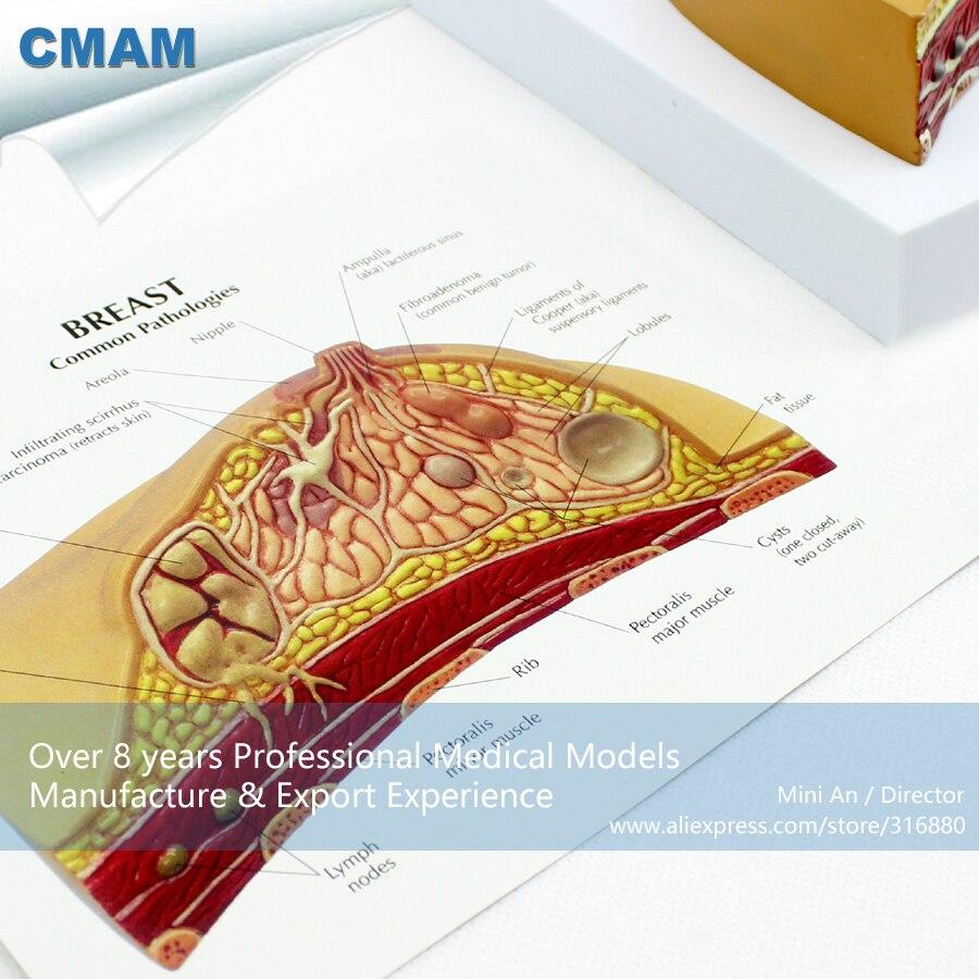 12461 CMAM ANATOMY23 Weibliche Brust Gemeinsame Pathologien ...