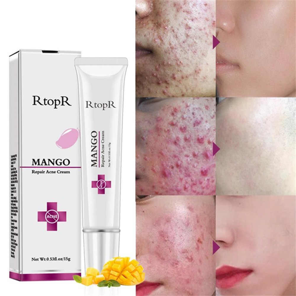 15g RtopR Mango Repair Acne Cream Anti-acne Treatment Moisturizing Scar Blackhead Shrink Pores Whitening Facial Skin Care TSLM2