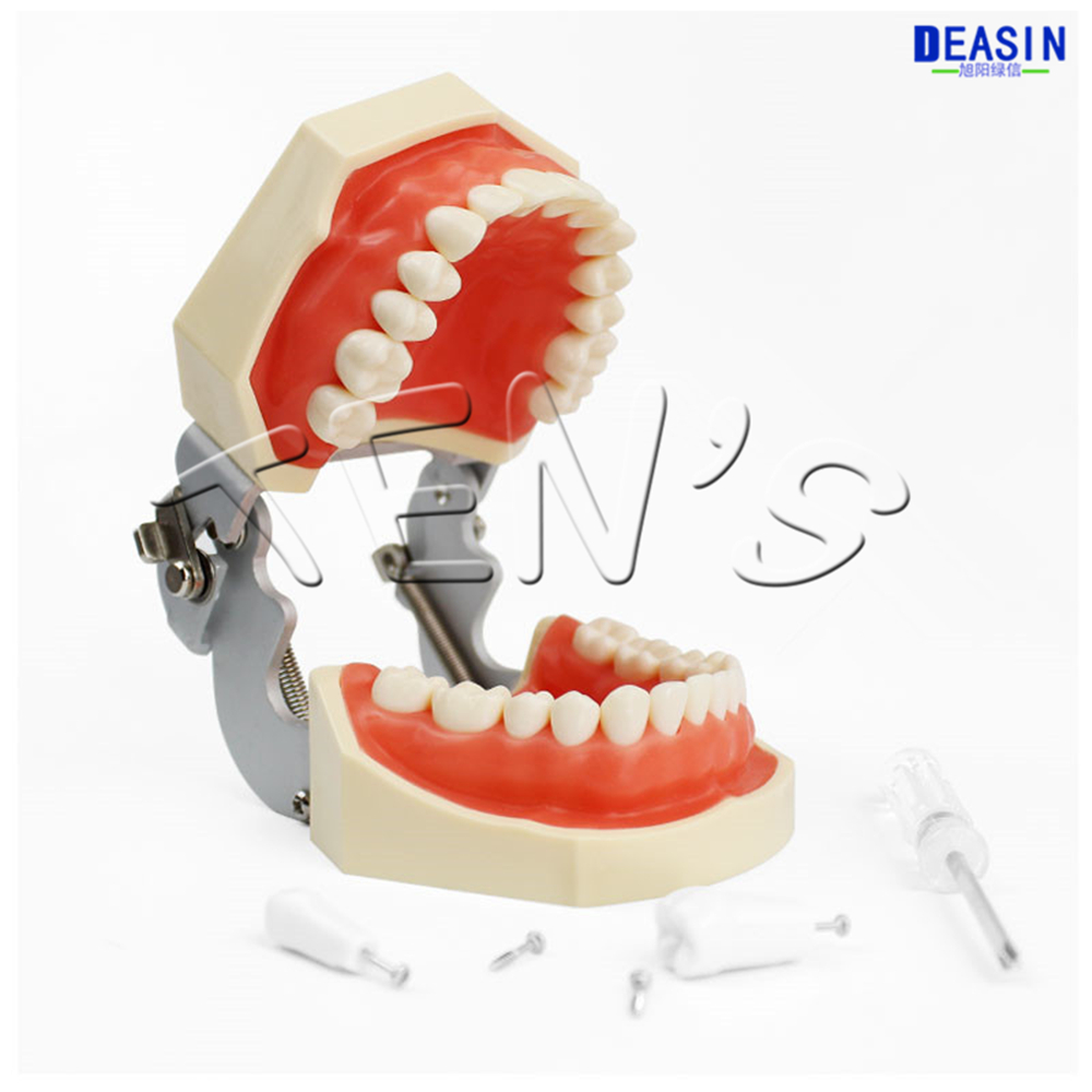 1 pcs Dental removable dental model dental tooth arrangement practice model with screw teaching simulation model soarday dental endodontic restoration model teaching communication model pathological display dental caries