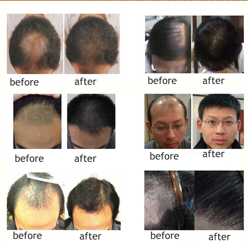 40ml/Pack Hair Boost Hair Growth Loss Products Anti Bald Alopecia Hair Loss Remedies 100% Natural Herbs Anti Hair Loss Treatment