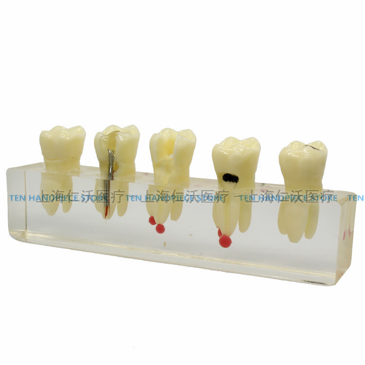 2018 good quality Dental root canal model Dental practice teaching model Dental prosthetic dental teaching training good quality dental removable dental model dental tooth arrangement practice model with screw teaching simulation model