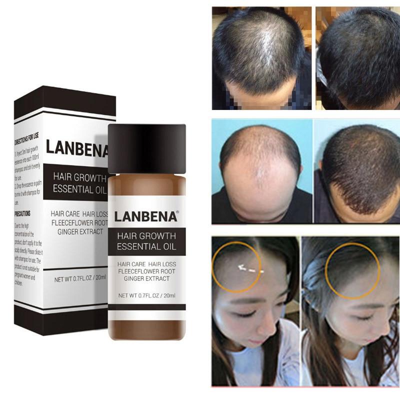 20ml LANBENA Wild Hair Growth Essence Liquid Essential Oils Prevent Hair Loss Serum Products Hair Treatments Men Women Hair Care Pakistan