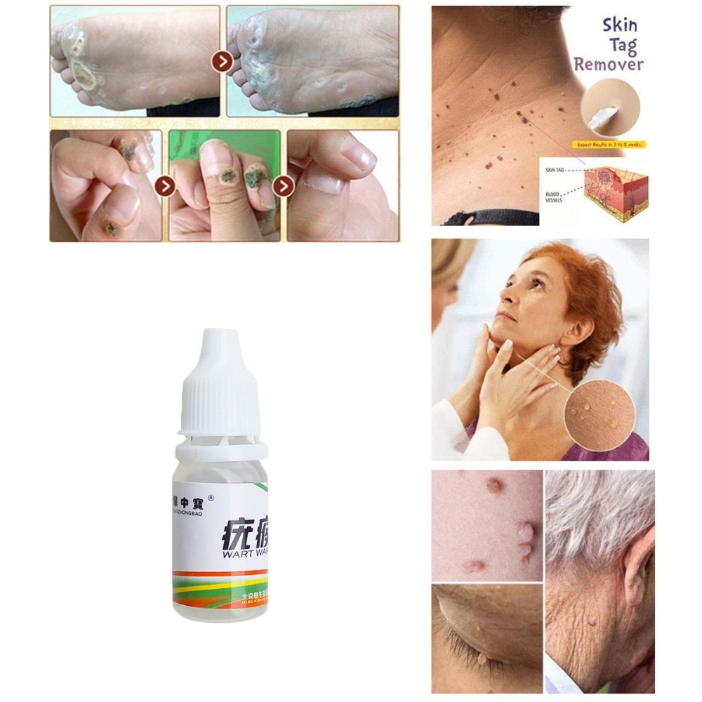 US $2 74 |Profession 1pcs Body Warts Treatment Cream Skin Tag Remover Foot  Corn Removal Plantar Warts Ointment Foot Care Cream-in Essential Oil from