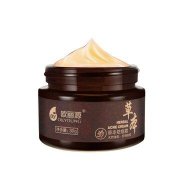 Profession Herbal Acne Cream Anti Pimple Spot Acne Scars Blackhead Removal Cream Whitening Beauty Skin Face Care Creams Acne Tre Sun Care