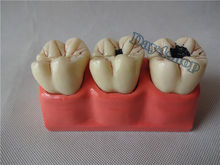 4:1 Size Dental Caries Removable Teeth Tooth Model Learn Study Model