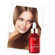 Alopecia Treatment Anti Hair Loss Essence Liquid Oil Control Hair Restoration and nourishing Dense Hair Growth Serum Hair Care