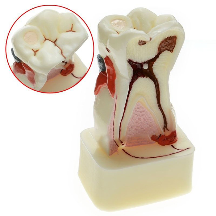 Orthodontic Braces,Dental Teeth Comprehensive Disease Study Teaching Tooth Model 380331 teeth orthodontic model metal braces teeth wrong jaws model demonstration tooth orthodontic training model