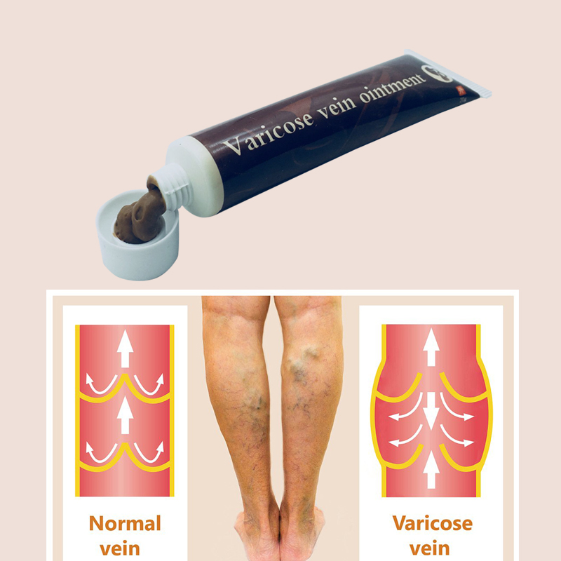 Chinese Natural Herbal Medicine For Treating Varicose Vascular Inflammation Massage Cream Cure Varicose Vein Ointment