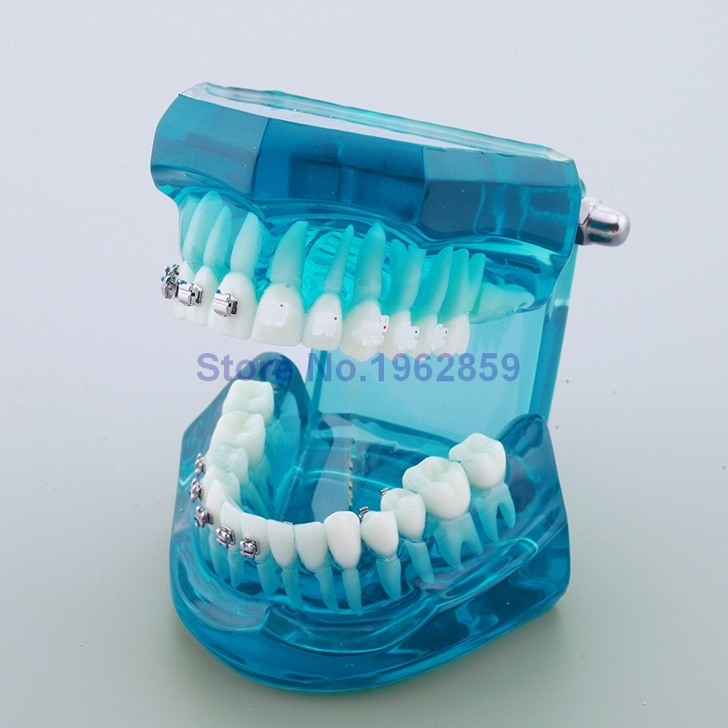 Teeth Model Orthodontic 4-type Brackets Contrast Metal Ceramic Lingual Invisalign Braces Dental Orthodontic Model transparent dental orthodontic mallocclusion model with brackets archwire buccal tube tooth extraction for patient communication