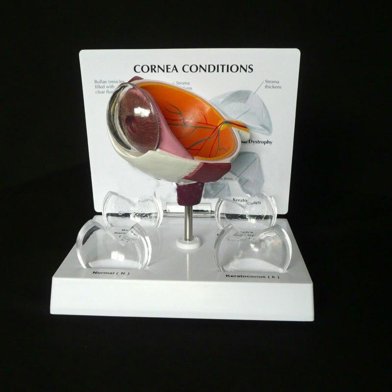 Humains Anatomicals Cornée Oeil Section Transversale Anatomique Modèle dans les traumatismes squelette anatomie anatomique formation médicale mannequins