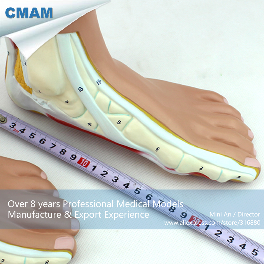 CMAM-MUSCLE10 Medical Section Anatomy Normal, Flat, Arched Foot Model,  Medical Science Educational Teaching Anatomical Models normal foot flat feet bow foot foot combined anatomical model
