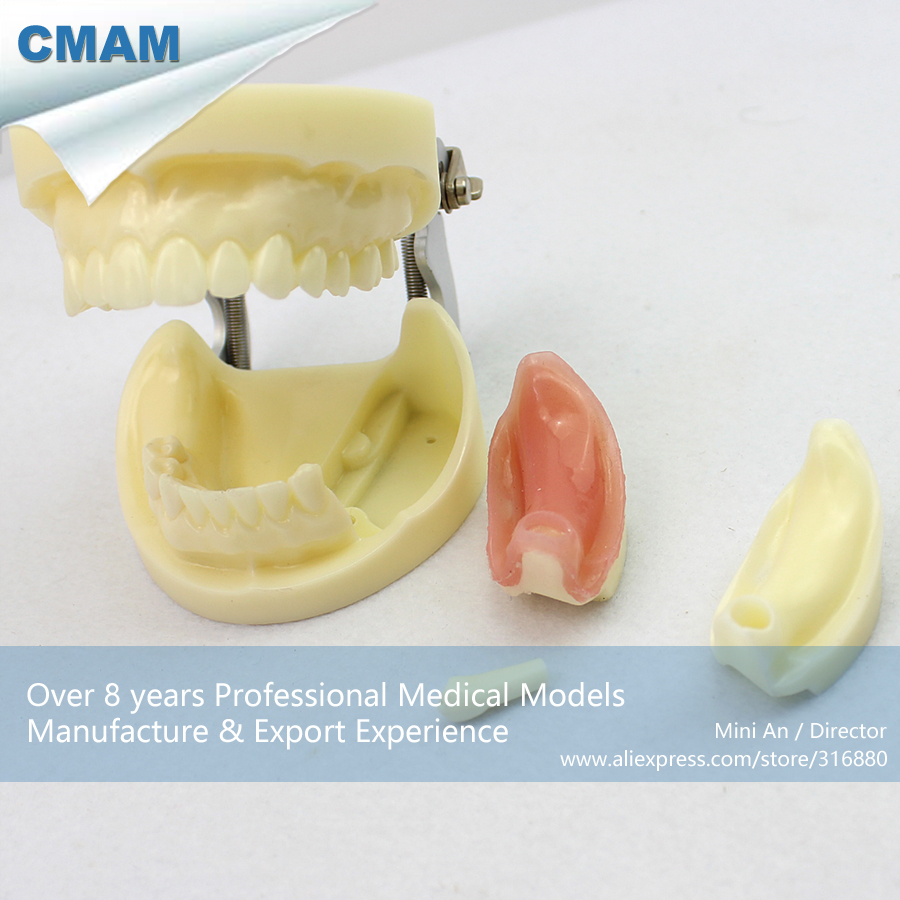 12617 CMAM-IMPLANT06  Dental Training Model In Oral Surgery Teaching , Medical Science Educational Teaching Anatomical Models 12569 cmam dental10 cranial nerve model in oral cavity medical science educational dental teaching models