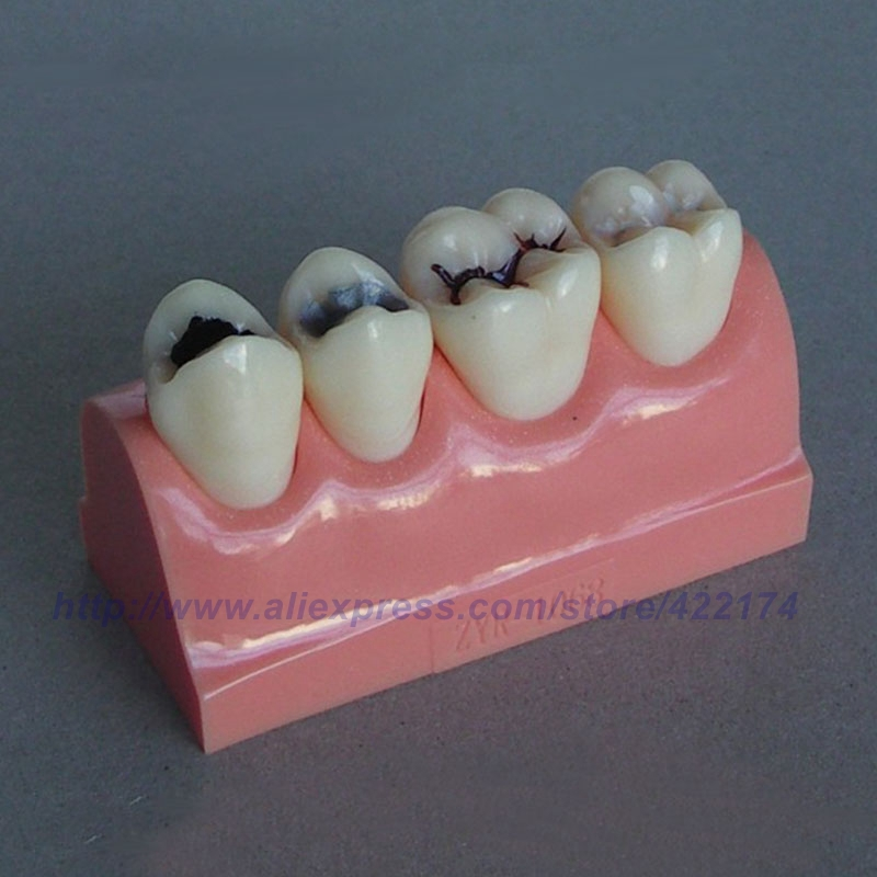 Caries treatment model dental tooth teeth anatomical anatomy dentist model odontologia free shipping implant model with bridge and caries item no 2007 dental tooth teeth dentist anatomical anatomy model odontologia