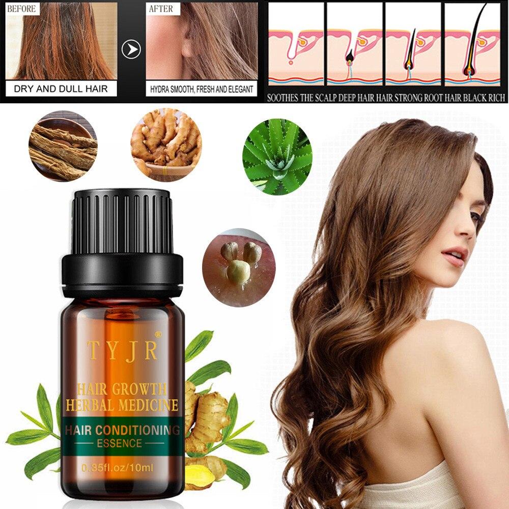 100% Wahr Heißer Haar Wachstum Essenz Erweiterte Dünner Werdendes Haar & Haar Verlust Ergänzung Natürliche Organische Haar Wachstum öle Für Thickerand Endlich SchüTtelfrost Und Schmerzen
