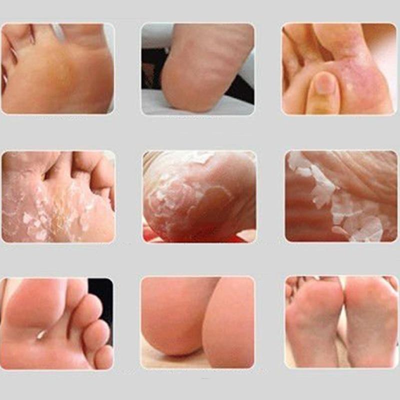 2pair Baby Foot Mask Exfoliating Foot Mask Feet Cream Nourish Moisturizing Smooth Calluses Peeling Feet Care Socks for Pedicure 3