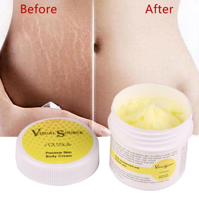 Cream Remove-Stretch-Marks Maternity-Skin-Repair Anti-Wrinkle 4