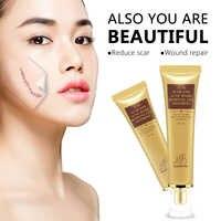 MQ Useful 30g TCM SCAR AND ACNE MARK REMOVAL GEL OINTMENT Acne Scar Cream For Neck Leg Arm Health Cream Skin Care Good Cream