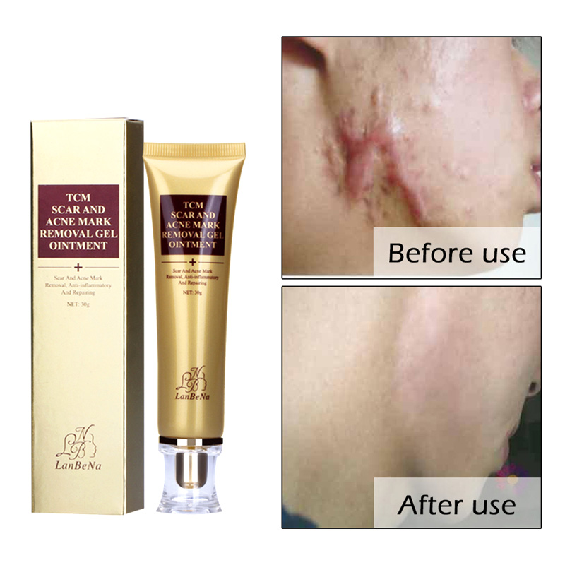 2018 Hot Face Care Acne Scar Cream Ginseng Essence Anti Acne Remover Cream Makeup Spots Stretch Marks Remove Scar Tool FM88