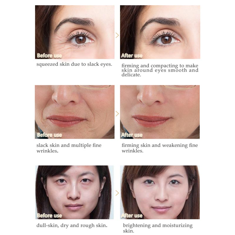 Artiscare Peptide Anti Wrinkle Facial Cream Whitening Lifting Day