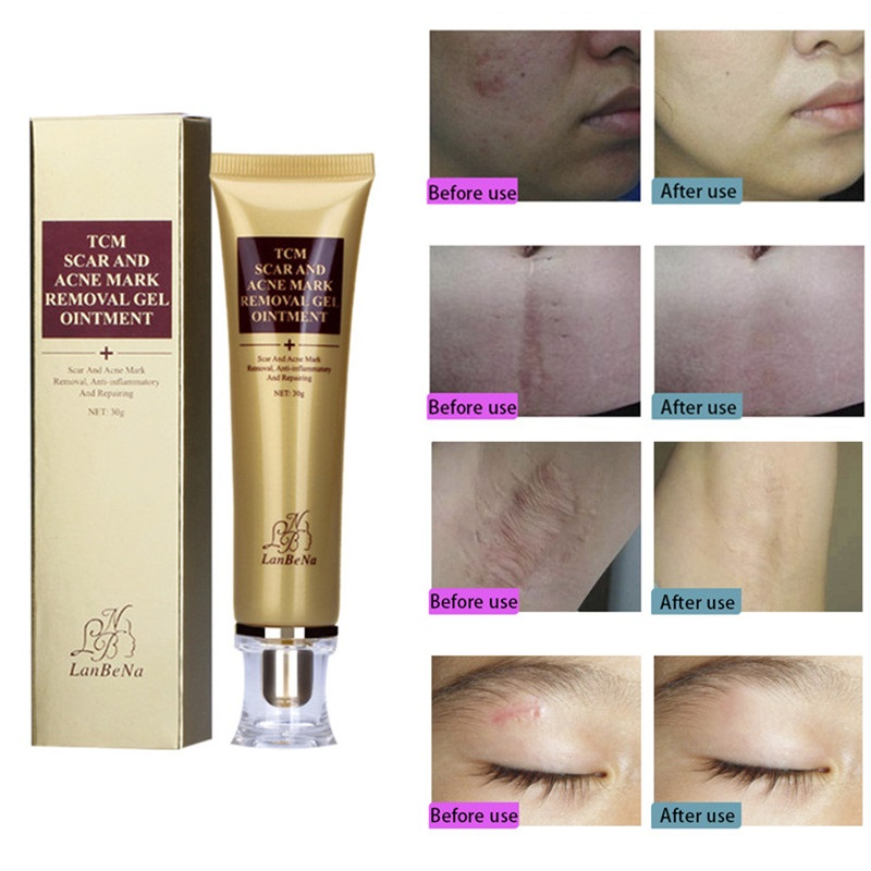 30g Remove Acne And Skin Scar Cream Face Whitening Cream Pimple