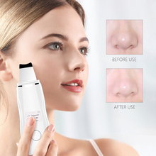 Ultrasonic Skin Peeling Machine Ultrasonic Scrubber Shovel Cleaner Blackhead Acne Removal Deeply Clean Facial Lifting Massager new deeply ultrasonic face skin cleaner device blackhead removal device peeling shovel machine face exfoliator pore skin clean