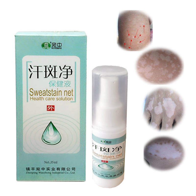 Chinese Herbal Medicine Spray Professional Treatment For Skin White Spot Vitiligo Eczema Sweatstain Net health Care Solution hotsale traditional chinese bai dian ke vitiligo natural treatment for feminine hygiene skin care