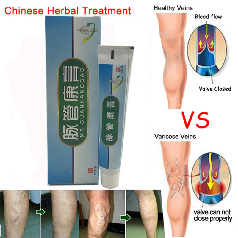 Medical Varicose Veins Treatment Leg Acid Bilges Itching Earthworm Lumps Old Bad Leg Vasculitis Cream Chinese