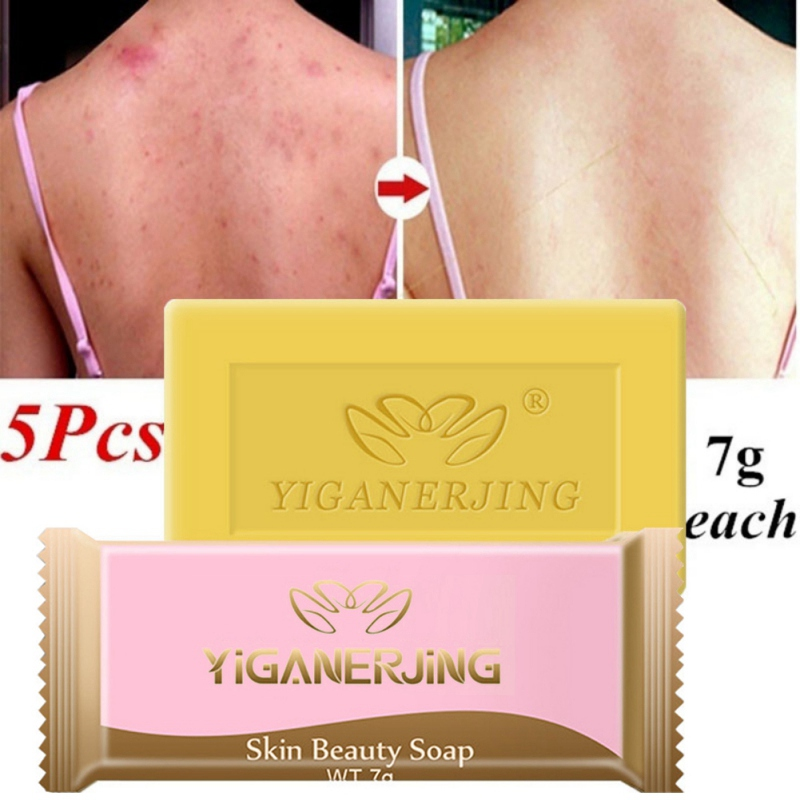 5pcs Sulfur Soap Oil-control Acne Treatment Blackhead Remover Soap Whitening Cleanser Chinese Traditional Skin Care
