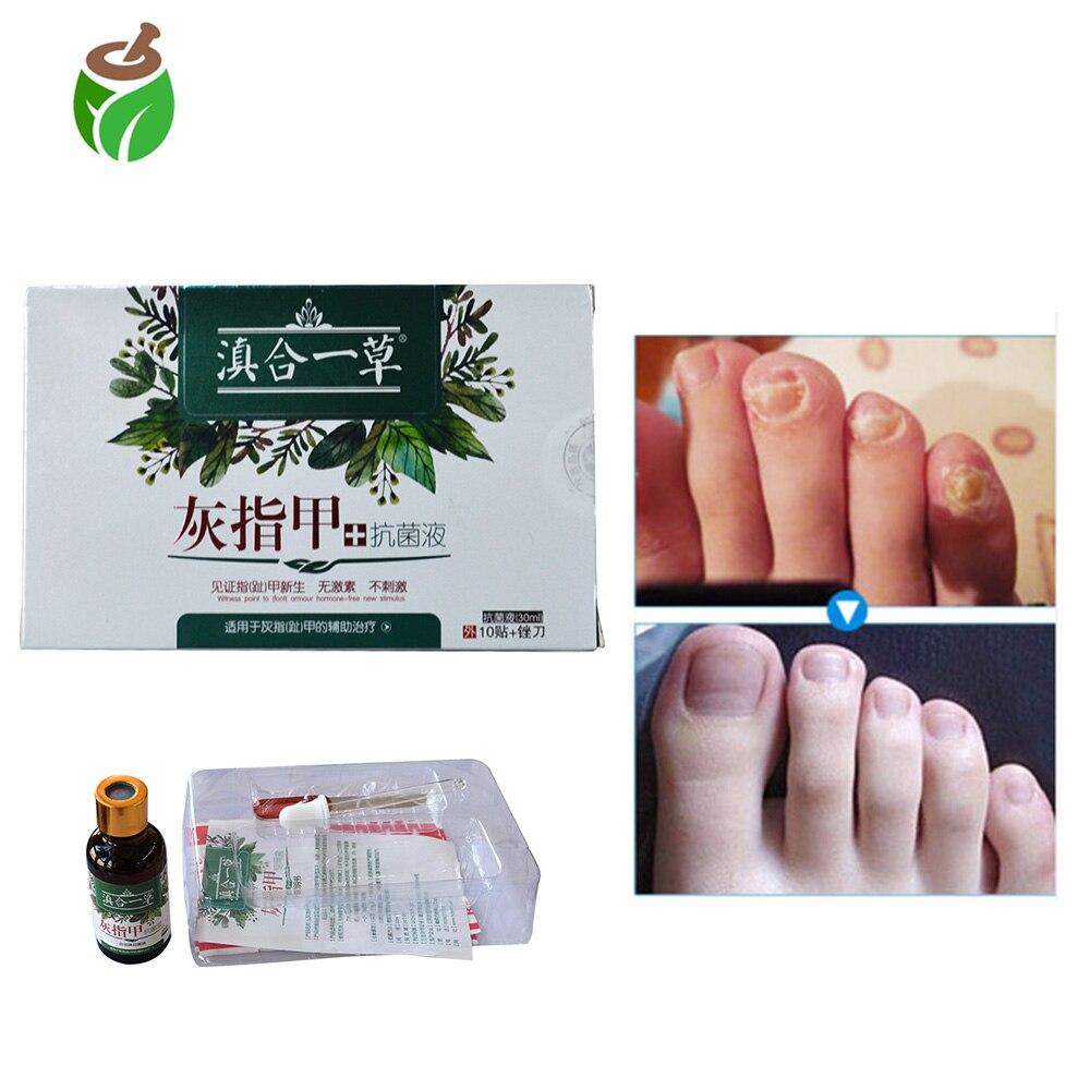 Pacotes de Onicomicose Paroníquia 2 atural Creme de Ervas Essência Cuidados Dedo Do Pé Dedo Do Pé Unha Fungo infecção de remoção de unhas Espessas