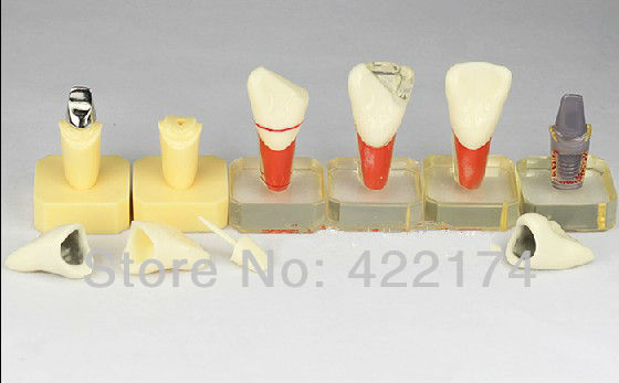 Free Shipping Dental restoration prothesis study model dental tooth teeth dentist dentistry anatomical anatomy model odontologia soarday children primary teeth alternating transparent model dental root clearly displayed dentist patient communication