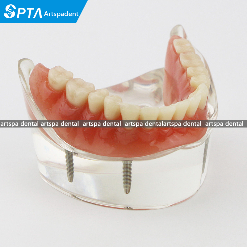 Modèle d'étude des dents dentaires modèle de démonstration d'implant inférieur 4
