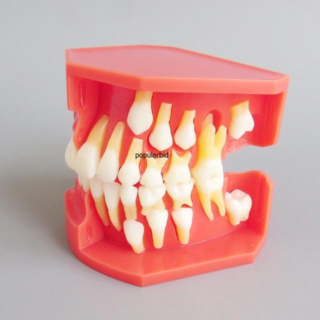 Dental Model #4006 01 - Teeth Eruption Development Model