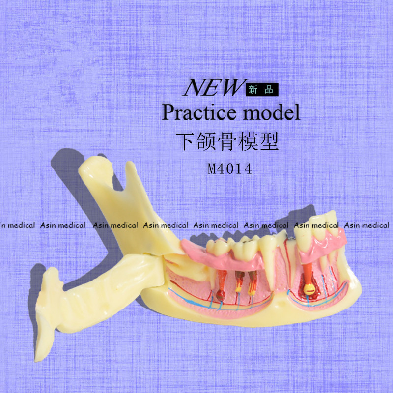 High Quality Mandibular Model for dental Communication Model dental Teaching Model soarday dental endodontic restoration model teaching communication model pathological display dental caries