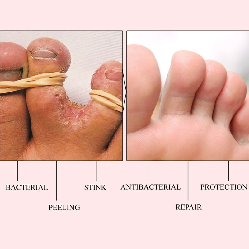 Herbal Foot Treatment Anti Fungal Infection Onychomycosis Paronychia Effective Toe Fungus Treatment Feet Repair Cream Foot Care5