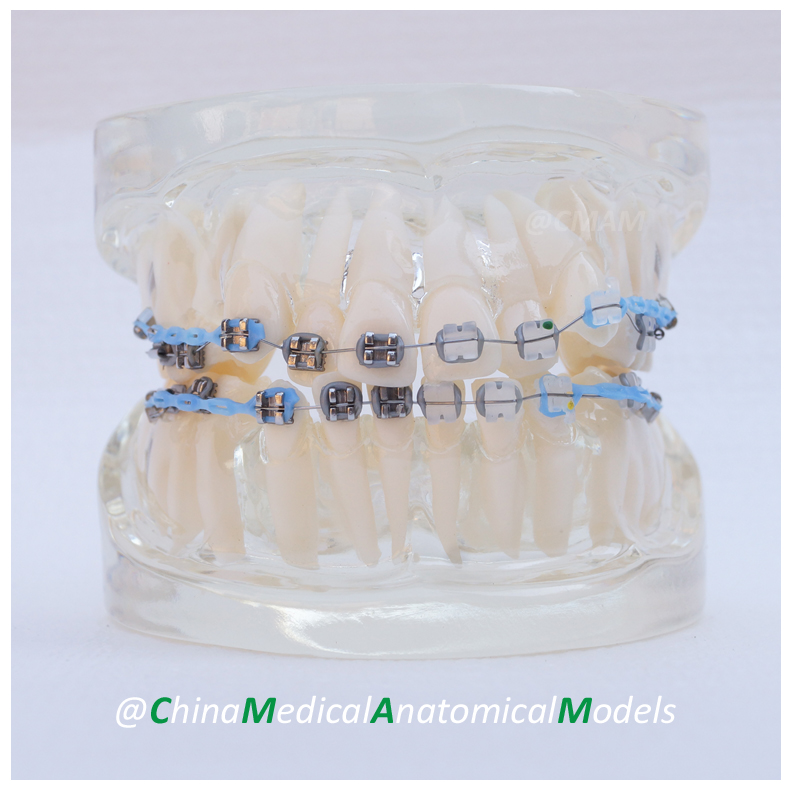 13024 DH202-2 Dentist Education Oral Dental Ortho Metal and Ceramic Model, China Medical Anatomical Model 3 1 human anatomical kidney structure dissection organ medical teach model school hospital hi q