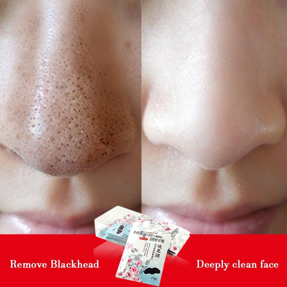 1 Pcs Schwein Nase Kräuter Mitesser Entferner Maske Gesicht Pflege Pore Streifen Entfernen Reiniger Mineral Conk Kosmetische Schwarz Kopf Modische Und Attraktive Pakete