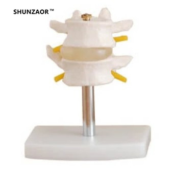 SHUNZAOR 16*9*8cm Lumbar Set (2 pcs) lumbar disc herniation demonstration model,Human lumbar model medical teaching model